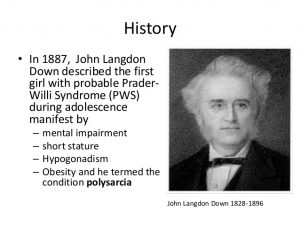 Bác sĩ John Langdon Down (1828 - 1896)